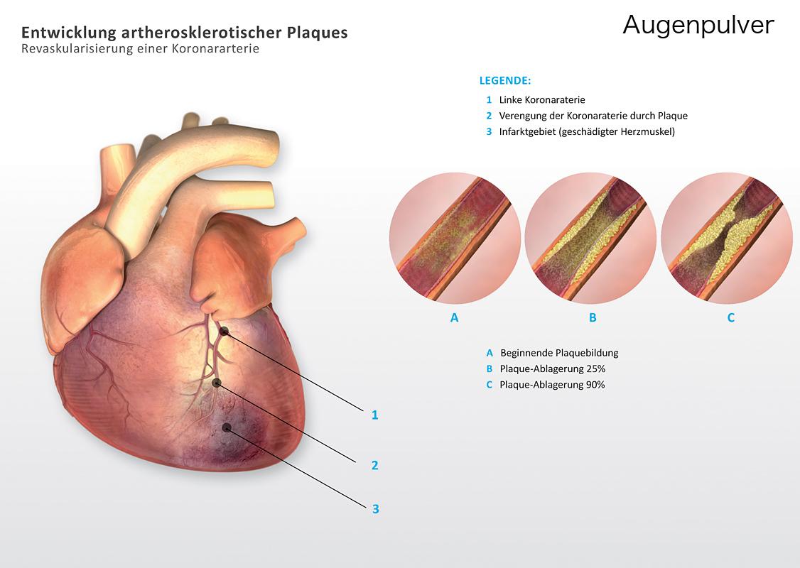 Ungewöhnlich Koronararterie Diagramm Anatomie Galerie - Anatomie Von ...